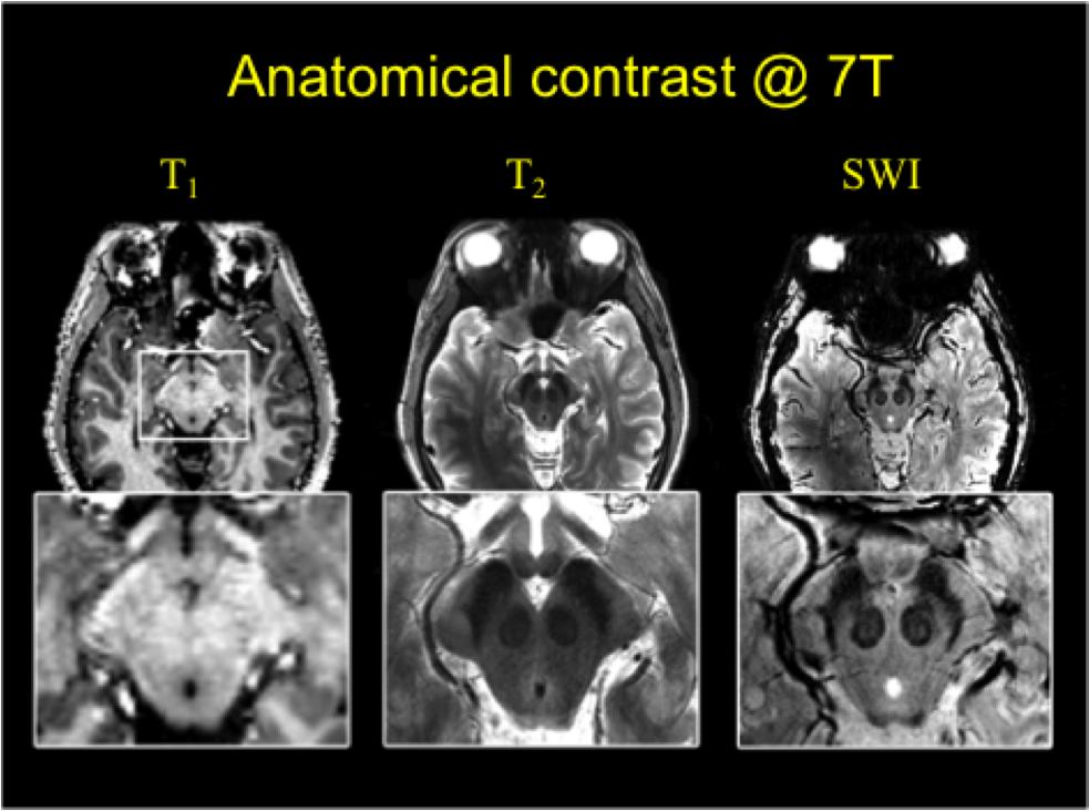 Anatomy Of Brain Mri Image collections - human body anatomy