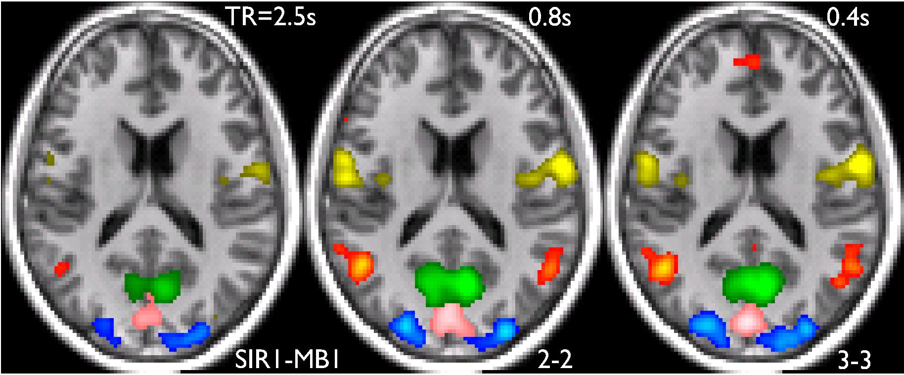 Publications » fmri.at | neuroimaging & stimulation